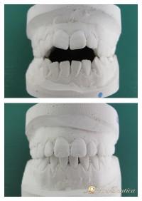 Metamorfoza ortodontyczna #1