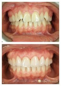 Metamorfoza ortodontyczna #10