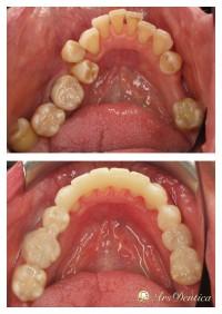 Metamorfoza perio-ortodontyczna #11