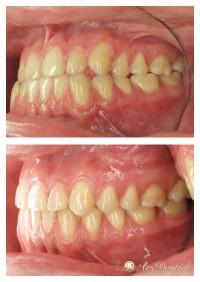 Metamorfoza ortodontyczna #12