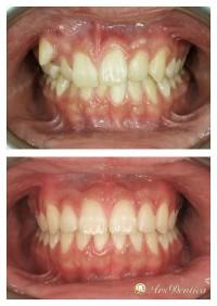 Metamorfoza ortodontyczna #13