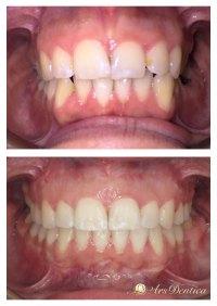 Metamorfoza ortodontyczna #14