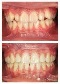 Metamorfoza ortodontyczna #15