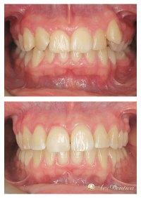 Metamorfoza ortodontyczna #16
