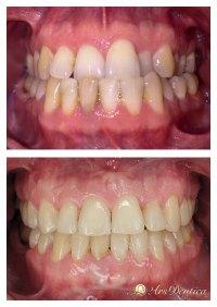 Metamorfoza ortodontyczna #17