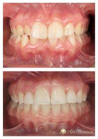 Metamorfoza ortodontyczna #18