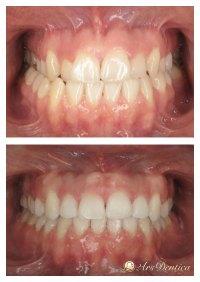 Metamorfoza ortodontyczna #19