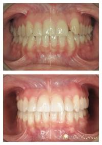Metamorfoza ortodontyczna #2