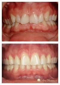 Metamorfoza ortodontyczna #3