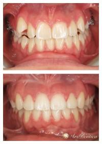 Metamorfoza ortodontyczna #4