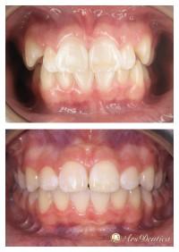 Metamorfoza ortodontyczna #5