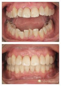 Metamorfoza ortodontyczna #6