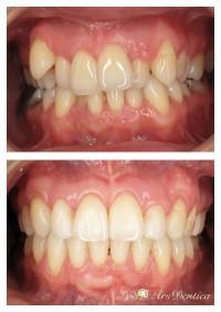 Metamorfoza ortodontyczna #7
