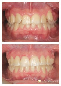 Metamorfoza ortodontyczna #8