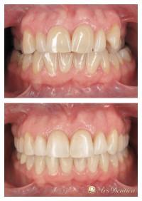 Metamorfoza ortodontyczna #9