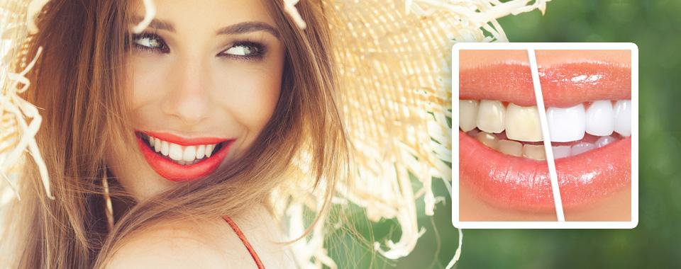 Wybielanie zębów - oferta wakacyjna