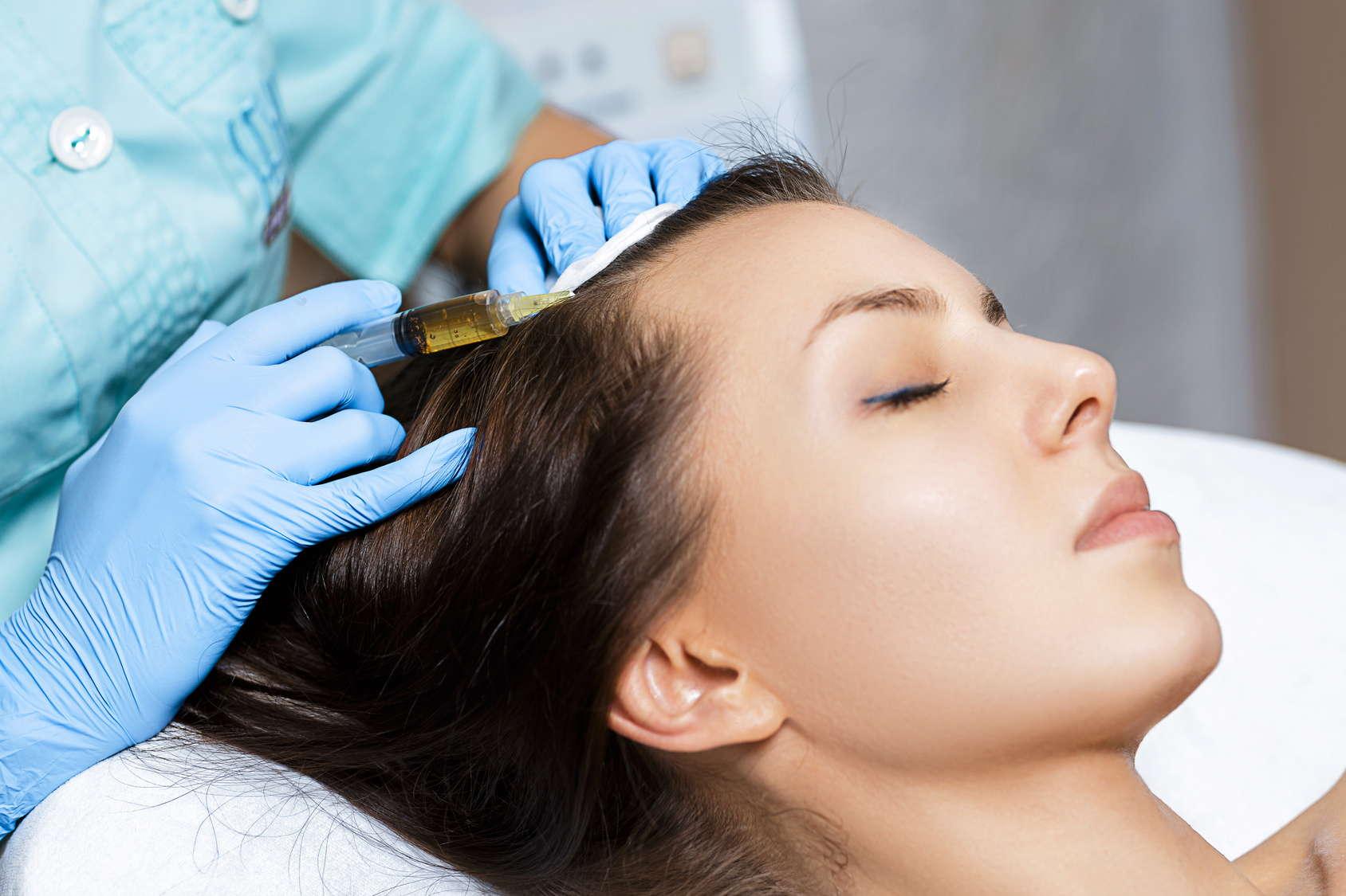 Zabieg z wykorzystaniem osocza bogatopłytkowego (PRP) w celu poprawy kondycji włosów