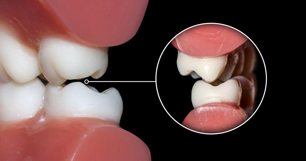 Zęby przemieszone w wyniku choroby okluzyjnej