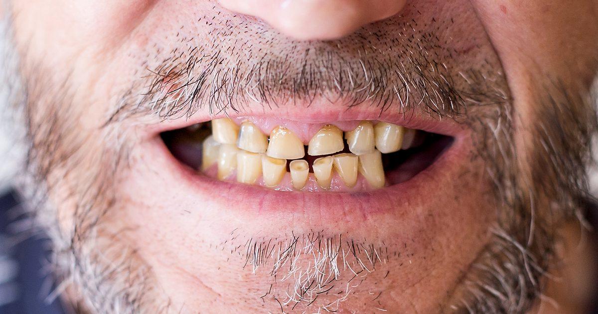 Starte zęby u dojrzałego mężczyzny