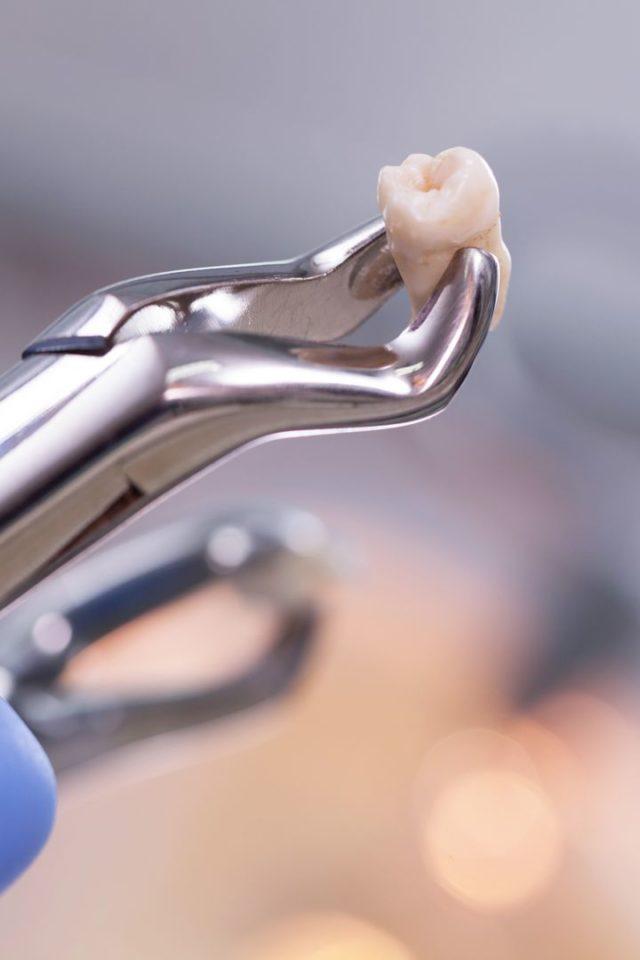Ząb po ekstrakcji